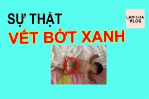 su-that-vet-bot-xanh