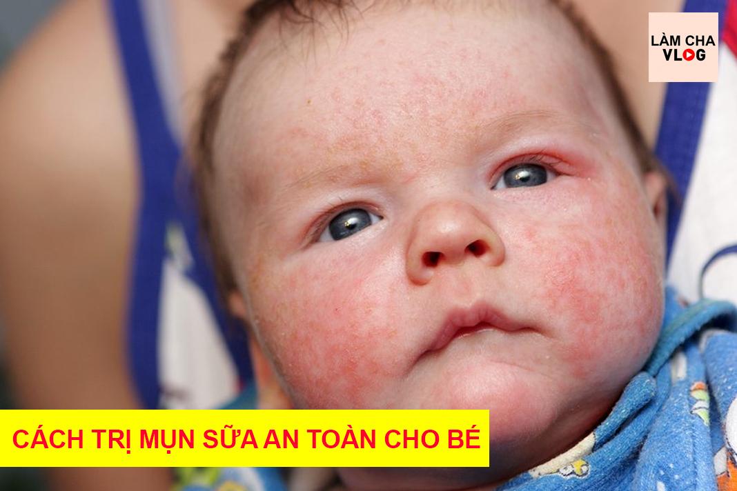 cach-chua-tri-mun-sua-mun-ke-cho-tre-so-sinh